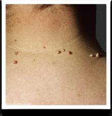 Como Eliminar las Verrugas del Cuello
